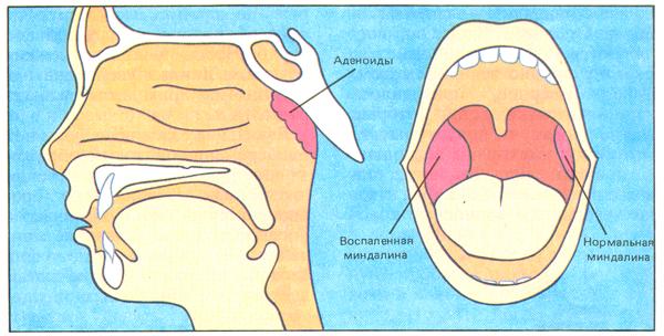 Лечение зубов при беременности в первый триместр